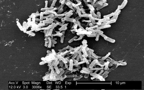 Fecal microbiota transplantation a promising treatment for C. difficile